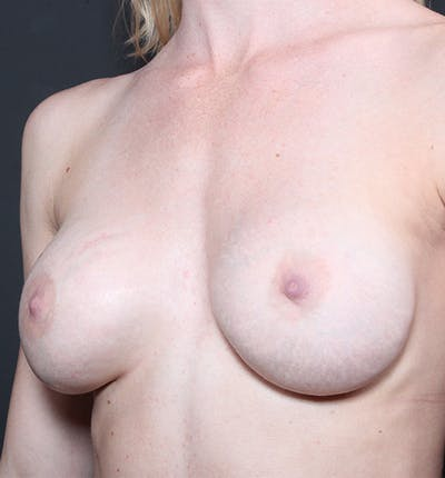 Breast Augmentation Gallery - Patient 14089644 - Image 1