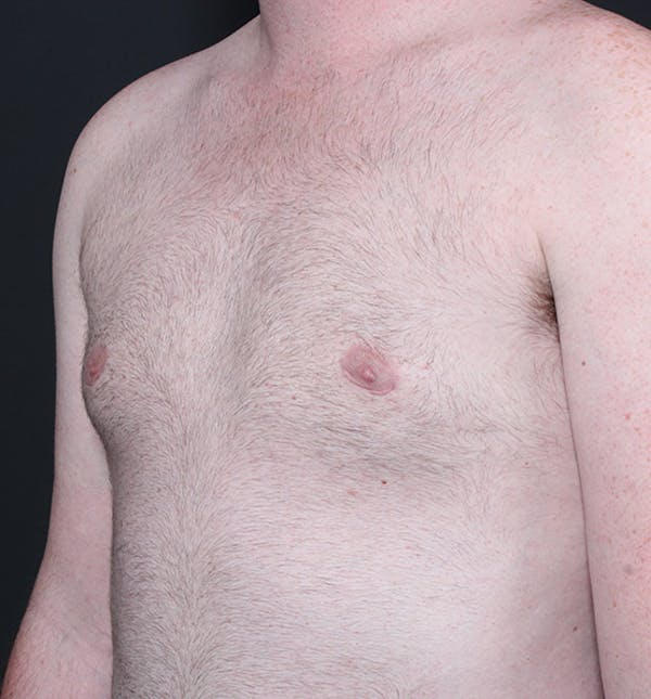 Male Chest Reduction Gallery - Patient 14089635 - Image 2