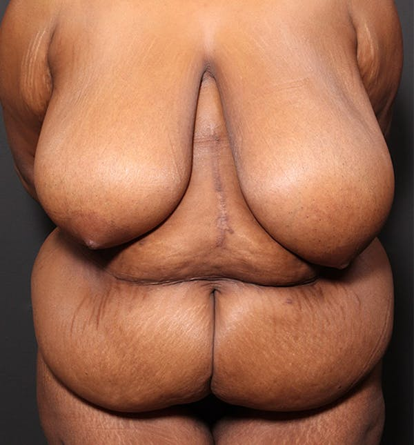 Breast Reduction Gallery - Patient 14089637 - Image 3