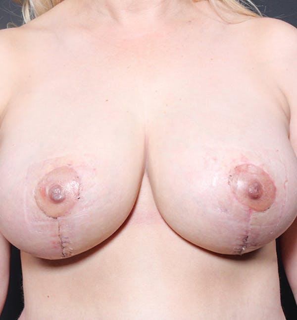 Breast Lift Mastopexy Gallery - Patient 14089633 - Image 4