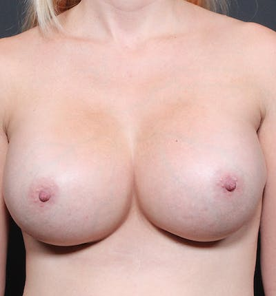 Breast Implant Revision Gallery - Patient 14089634 - Image 4