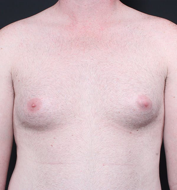 Male Chest Reduction Gallery - Patient 14089635 - Image 3