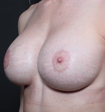 Breast Augmentation Gallery - Patient 14089644 - Image 2