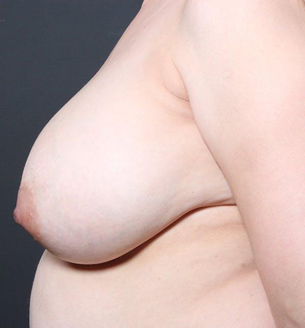 Breast Lift Mastopexy Gallery - Patient 14089633 - Image 5