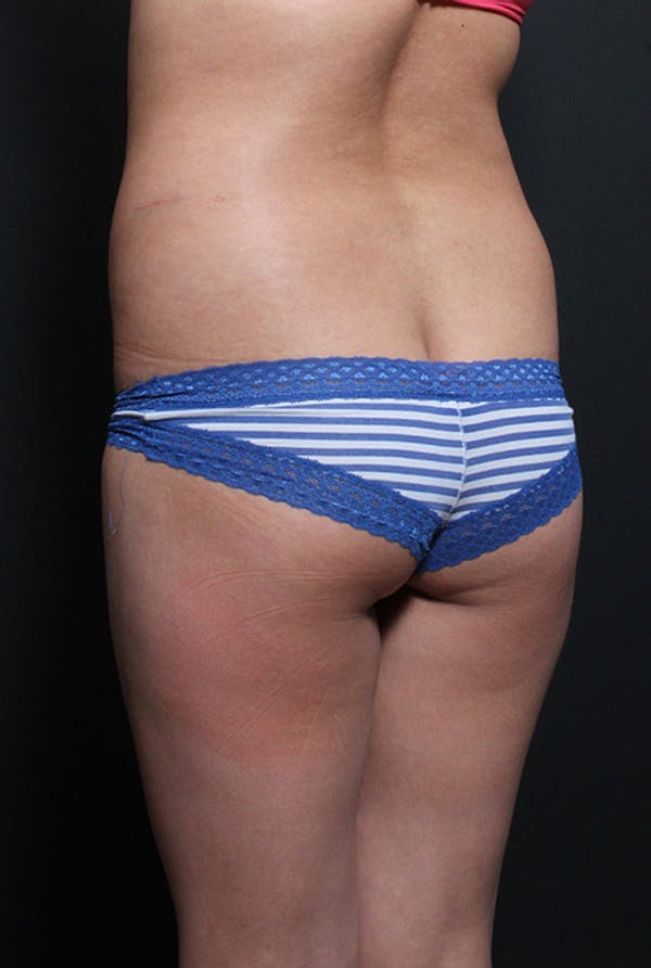 Brazilian Butt Lift Gallery - Patient 14089643 - Image 1