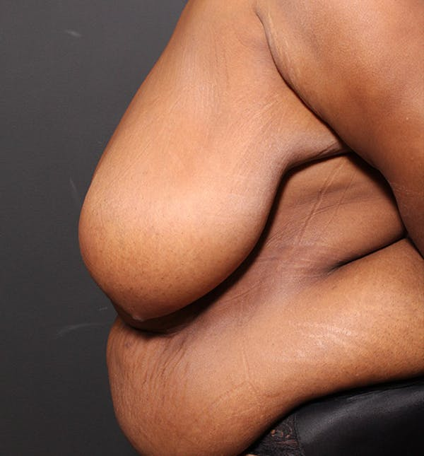 Breast Reduction Gallery - Patient 14089637 - Image 5