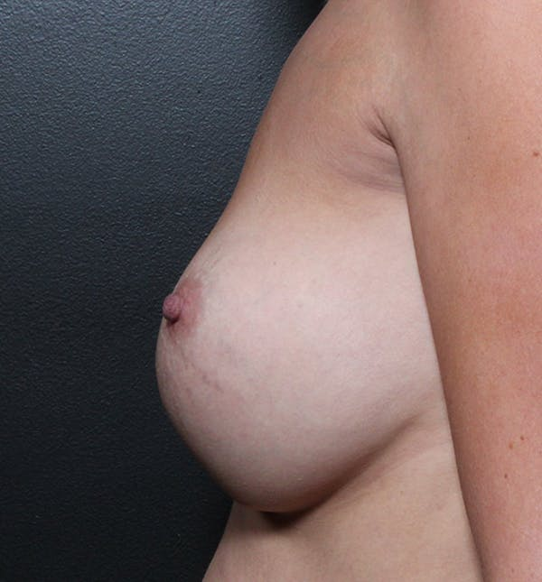 Breast Implant Revision Gallery - Patient 14089634 - Image 5