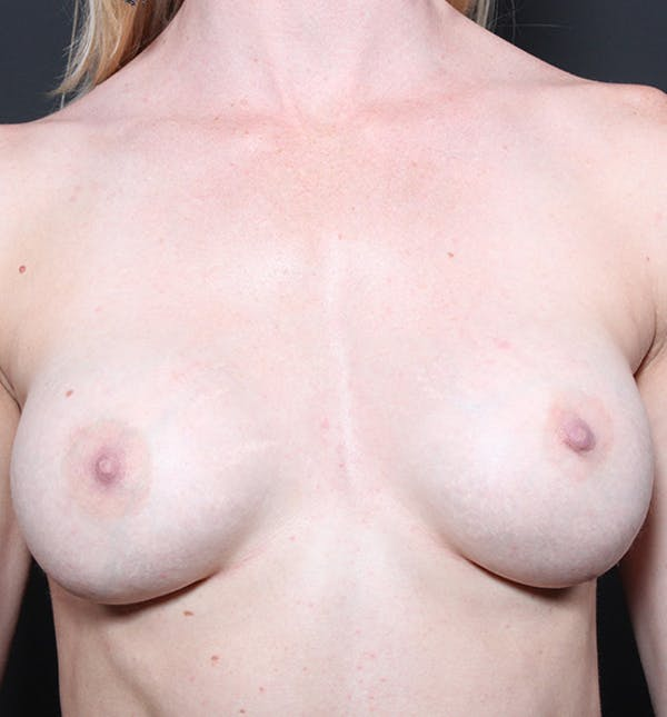 Breast Augmentation Gallery - Patient 14089644 - Image 3