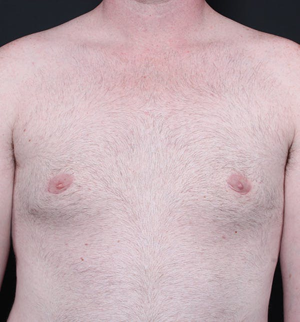 Male Chest Reduction Gallery - Patient 14089635 - Image 4