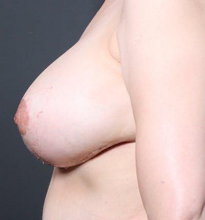 Breast Lift Mastopexy Gallery - Patient 14089633 - Image 6