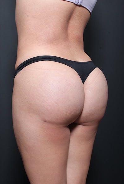 Brazilian Butt Lift Gallery - Patient 14089643 - Image 2