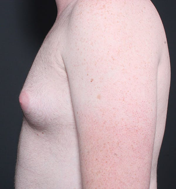 Male Chest Reduction Gallery - Patient 14089635 - Image 5