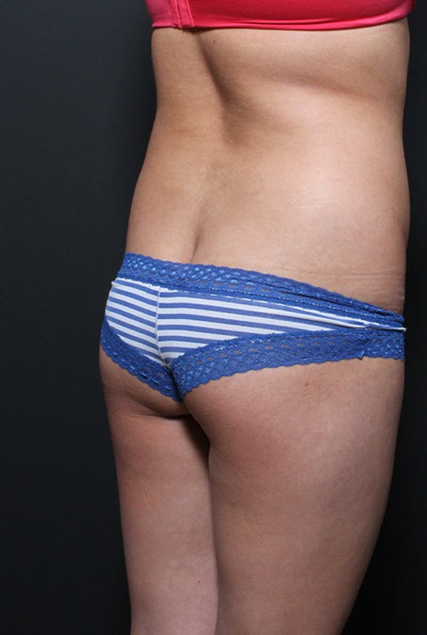 Brazilian Butt Lift Gallery - Patient 14089643 - Image 3