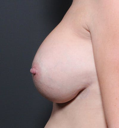 Breast Implant Revision Gallery - Patient 14089634 - Image 6