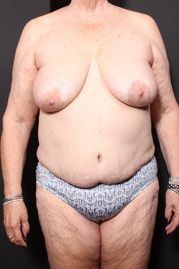 Breast Aug Fat Grafting Gallery - Patient 14089636 - Image 1