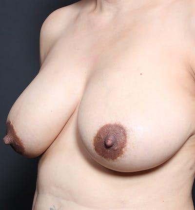 Breast Lift Mastopexy Gallery - Patient 14089641 - Image 1