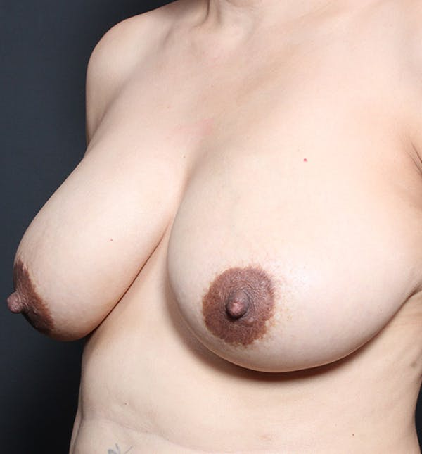 Breast Lift Mastopexy Gallery - Patient 14089641 - Image 1