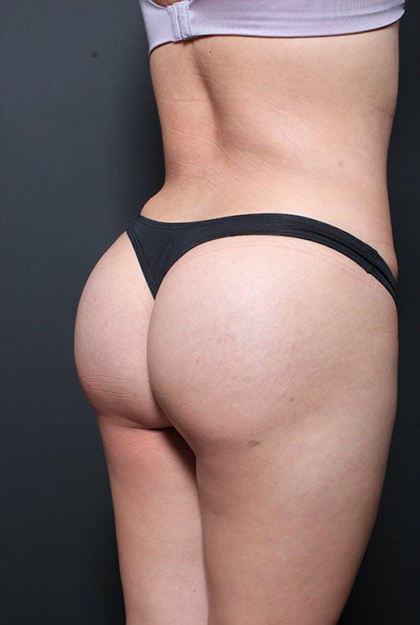 Brazilian Butt Lift Gallery - Patient 14089643 - Image 4