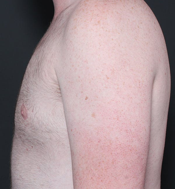 Male Chest Reduction Gallery - Patient 14089635 - Image 6