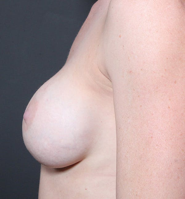 Breast Augmentation Gallery - Patient 14089644 - Image 5