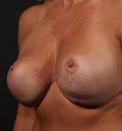 Breast Implant Revision Gallery - Patient 14089647 - Image 1