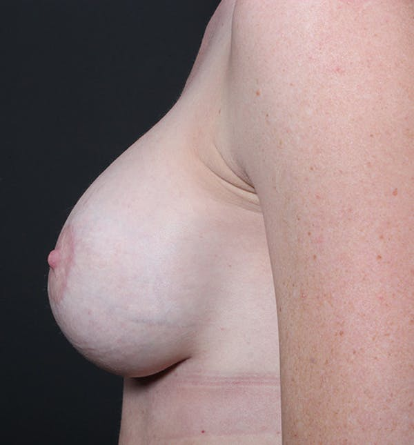 Breast Augmentation Gallery - Patient 14089644 - Image 6