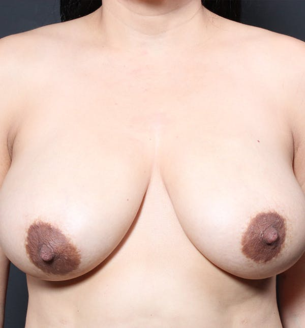 Breast Lift Mastopexy Gallery - Patient 14089641 - Image 3