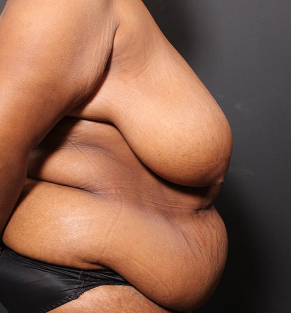 Breast Reduction Gallery - Patient 14089637 - Image 9