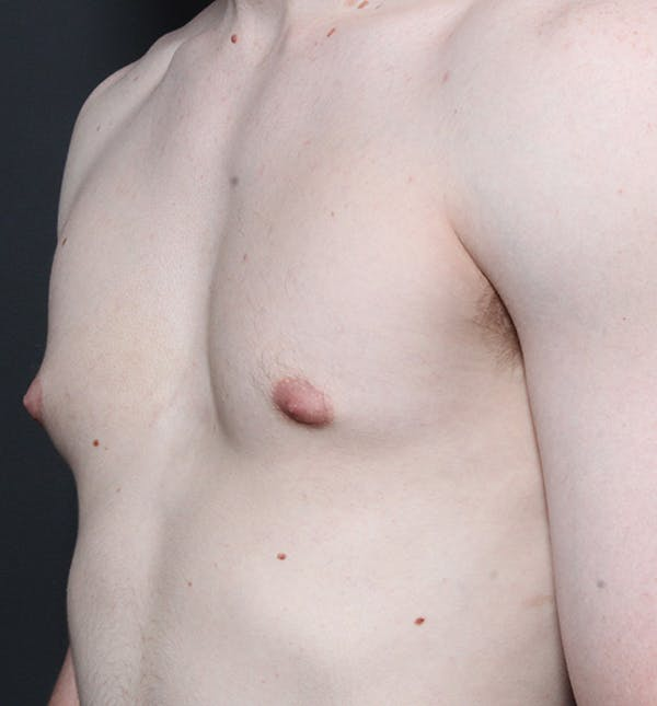 Male Chest Reduction Gallery - Patient 14089646 - Image 1