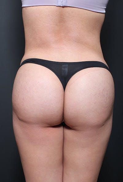 Brazilian Butt Lift Gallery - Patient 14089643 - Image 6