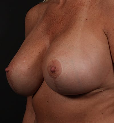 Breast Implant Revision Gallery - Patient 14089647 - Image 2