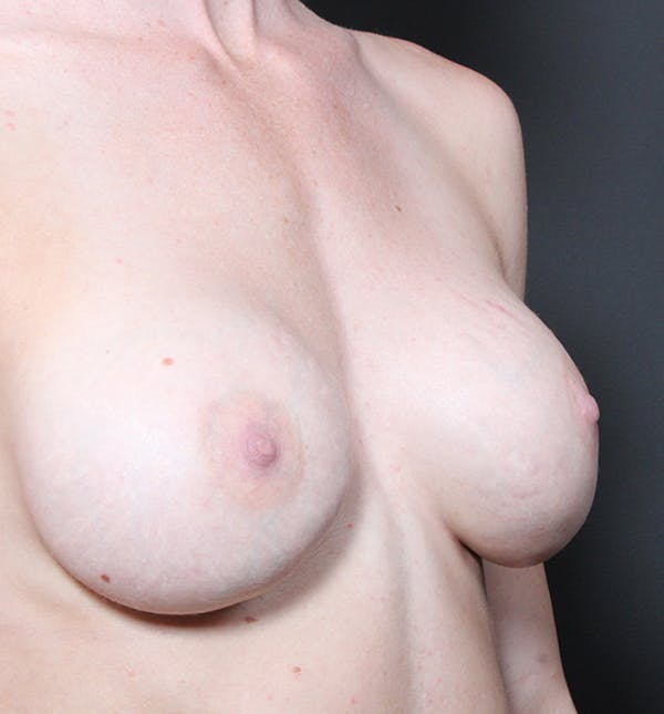 Breast Augmentation Gallery - Patient 14089644 - Image 7