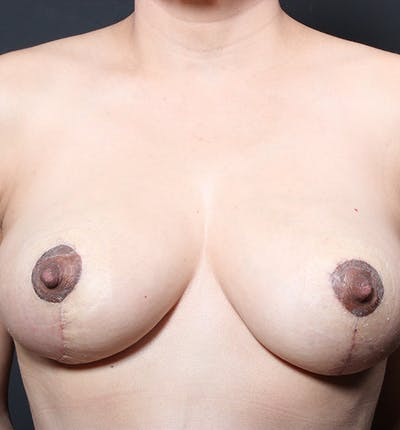 Breast Lift Mastopexy Gallery - Patient 14089641 - Image 4