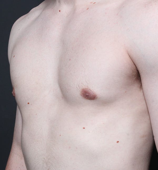 Male Chest Reduction Gallery - Patient 14089646 - Image 2
