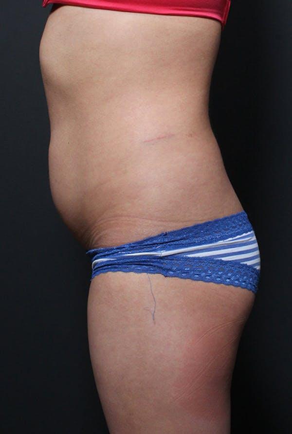 Brazilian Butt Lift Gallery - Patient 14089643 - Image 7