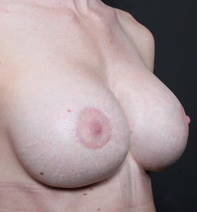 Breast Augmentation Gallery - Patient 14089644 - Image 8
