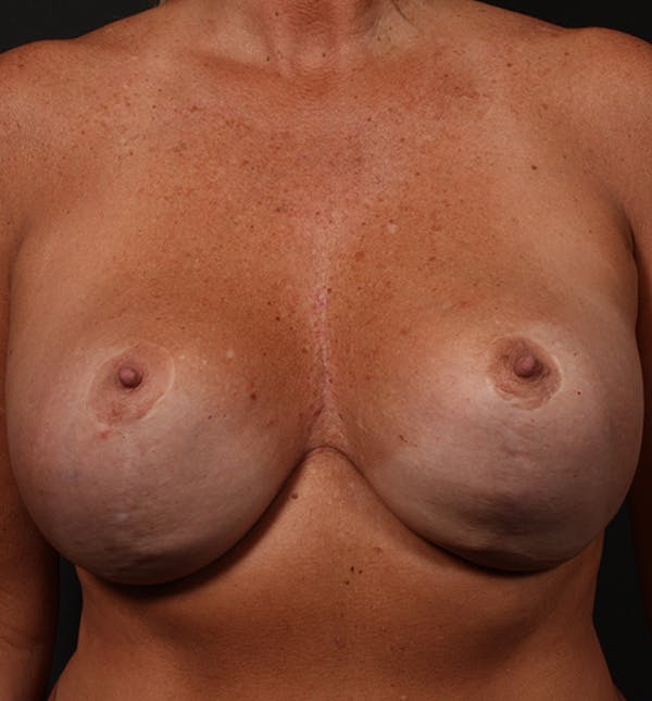 Breast Implant Revision Gallery - Patient 14089647 - Image 3