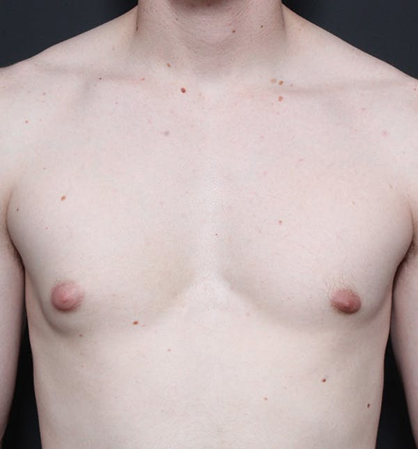 Male Chest Reduction Gallery - Patient 14089646 - Image 3