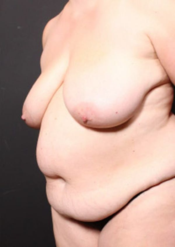 Breast Reduction Gallery - Patient 14089649 - Image 1