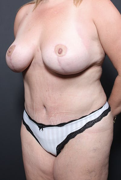 Mommy Makeover Gallery - Patient 14089648 - Image 2