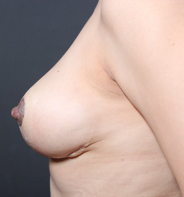 Breast Lift Mastopexy Gallery - Patient 14089641 - Image 6