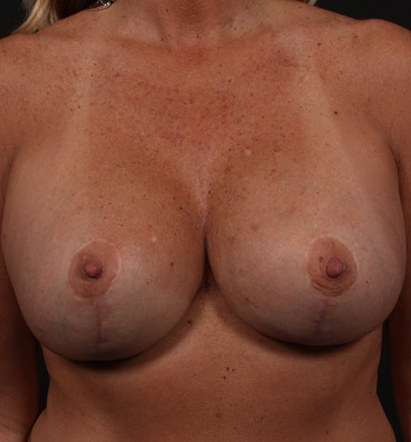 Breast Implant Revision Gallery - Patient 14089647 - Image 4