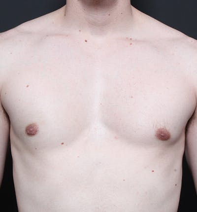 Male Chest Reduction Gallery - Patient 14089646 - Image 4