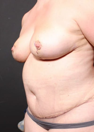Breast Reduction Gallery - Patient 14089649 - Image 2