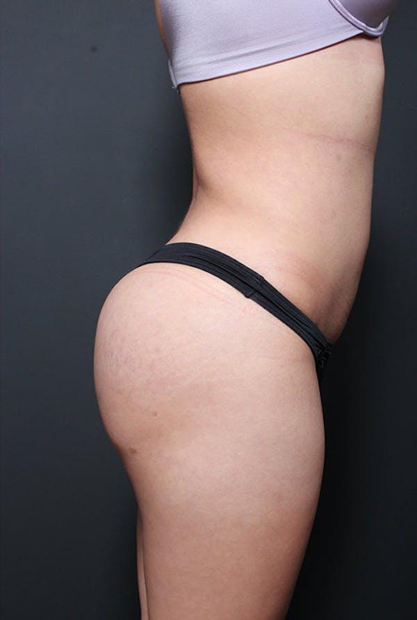 Brazilian Butt Lift Gallery - Patient 14089643 - Image 10