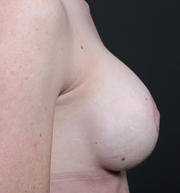 Breast Augmentation Gallery - Patient 14089644 - Image 10