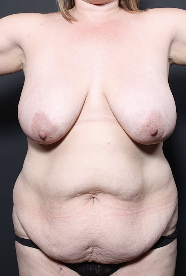 Mommy Makeover Gallery - Patient 14089648 - Image 3