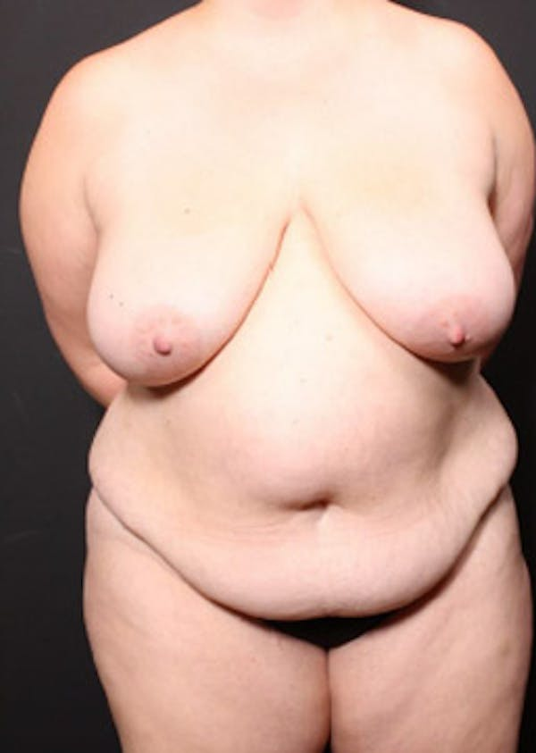 Breast Reduction Gallery - Patient 14089649 - Image 3