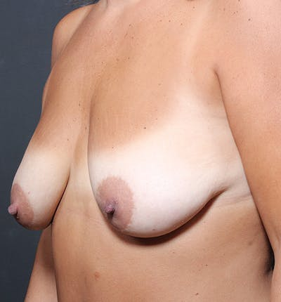 Breast Lift Mastopexy Gallery - Patient 14089651 - Image 1