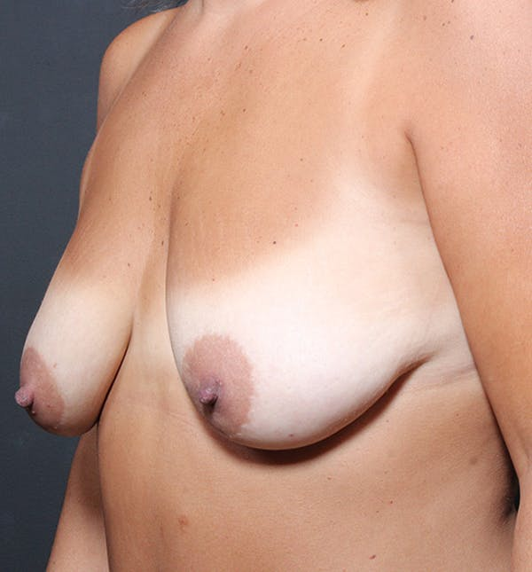 Breast Lift Mastopexy Gallery - Patient 14089651 - Image 1